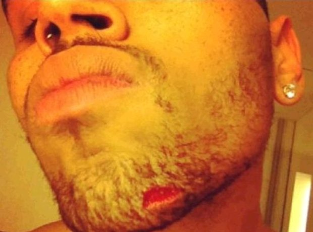 chris brown chin injury nightclub fight